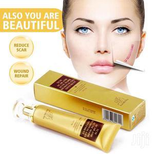 Original Lanbena Oil - Stretch Mark, Sunburn, Wrinkles Acne Removal   Skin Care for sale in Abuja (FCT) State, Jabi