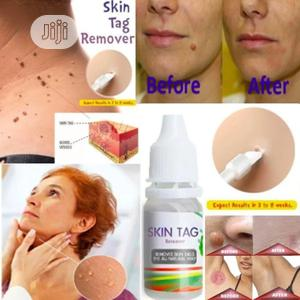 Skin Tag, Warts And Foot Corn Remover   Skin Care for sale in Lagos State, Surulere