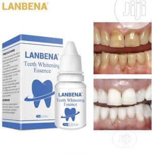 Lanbena Teeth Whitening   Bath & Body for sale in Lagos State, Alimosho