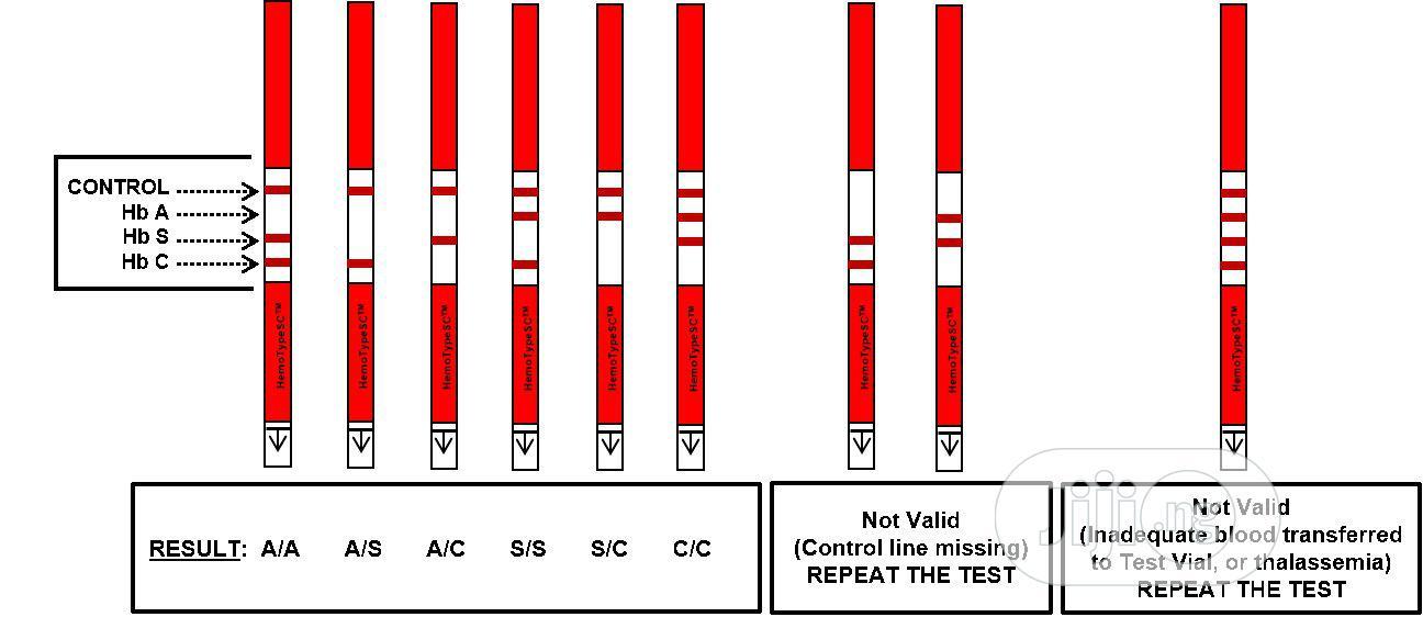 Archive: Genotype Testing Kit for A, S C (Hemotypesc 50strips/Pack)