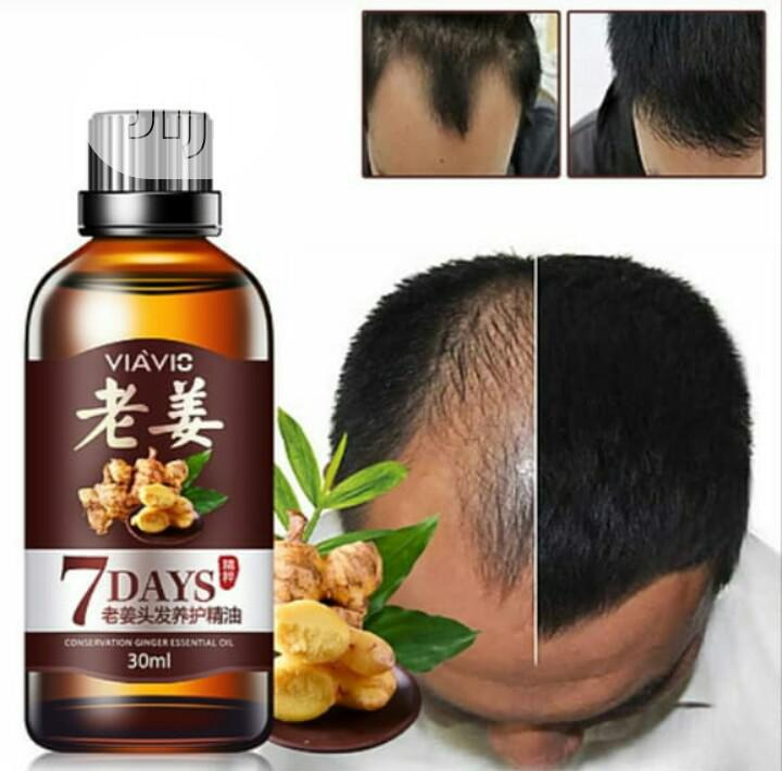 Hair Growth Oil   Hair Beauty for sale in Ibadan, Oyo State, Nigeria