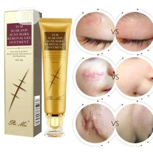Acne And Scar Removal   Skin Care for sale in Lagos State, Ikeja
