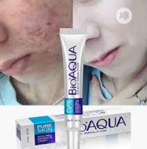 BIOAQUA Pure Skin Acne Treatment Scar Removal Wholesale   Skin Care for sale in Lagos State, Ikeja