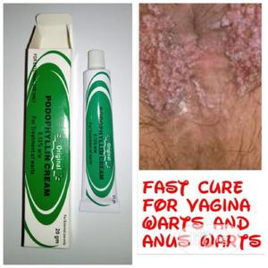 UDL Union Podophyllin Warts Cream for Anus and Vagina | Bath & Body for sale in Lagos State, Ikeja