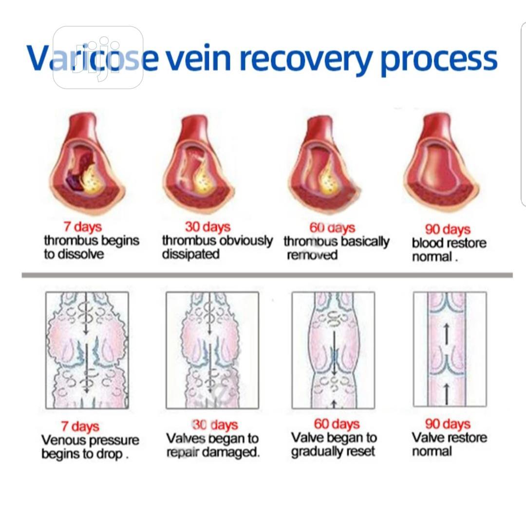 Varicose Veins Treatment Cream | Skin Care for sale in Amuwo-Odofin, Lagos State, Nigeria