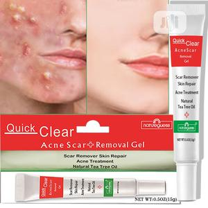 Quick Clear Acne Remover   Skin Care for sale in Lagos State, Ikeja