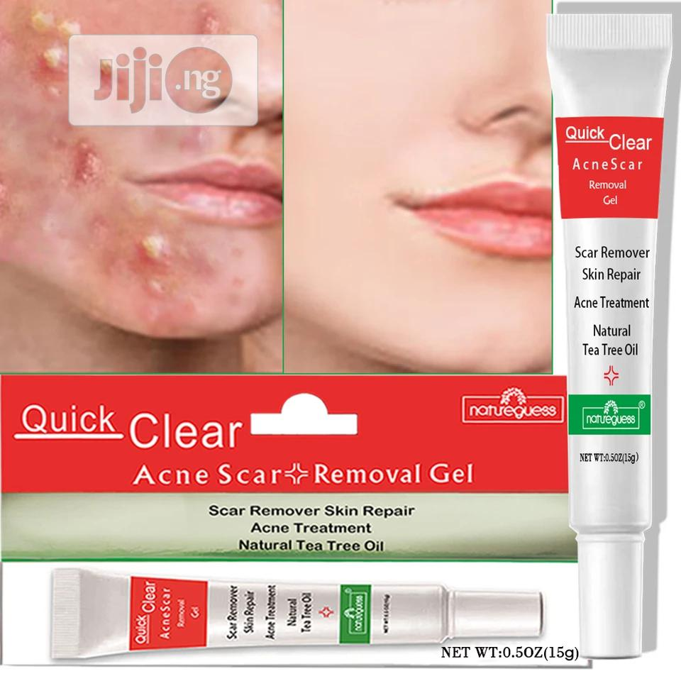 Quick Clear Acne Remover