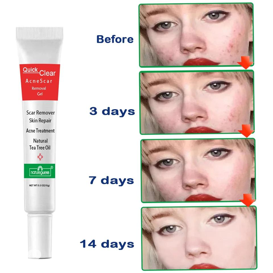 Quick Clear Acne Remover   Skin Care for sale in Ikeja, Lagos State, Nigeria