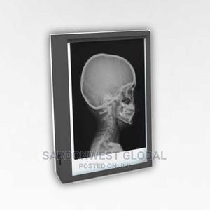 Single X-Ray Viewing Box   Medical Supplies & Equipment for sale in Lagos State, Surulere