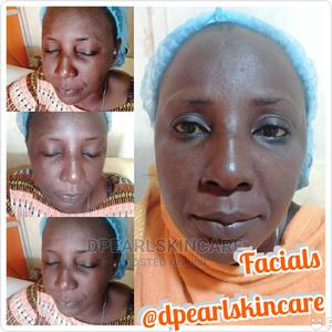 Facial Treatment | Health & Beauty Services for sale in Lagos State, Ejigbo