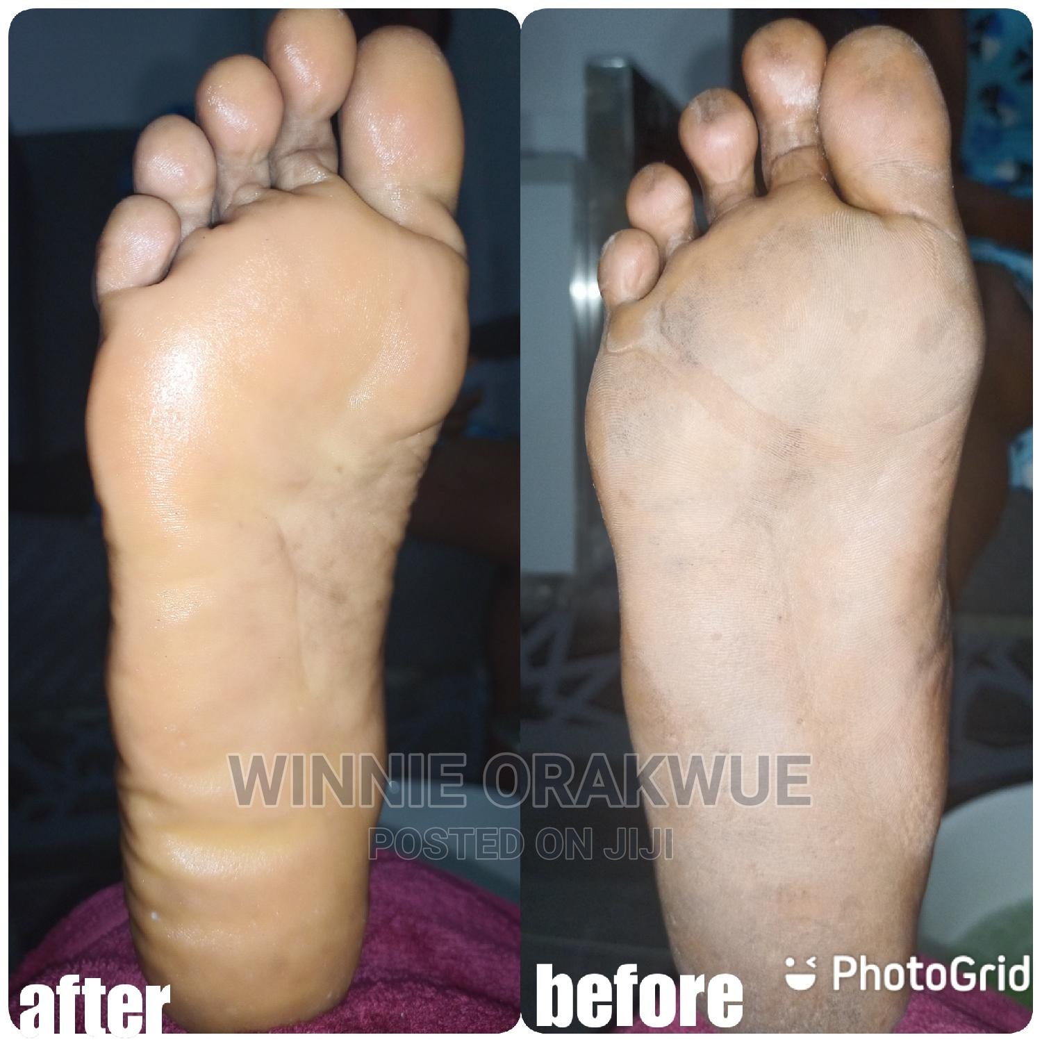 Therapist(Massage, Pedicure,Skin Tag Remover, Waxing)   Health & Beauty Services for sale in Ikeja, Lagos State, Nigeria