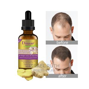 Hair Essential Oil,Anti Hair Loss | Hair Beauty for sale in Abuja (FCT) State, Central Business District