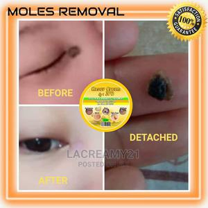 Kasoy Cream 4 Skintag/Syringoma/Warts/Mole Removal | Skin Care for sale in Lagos State, Ogba