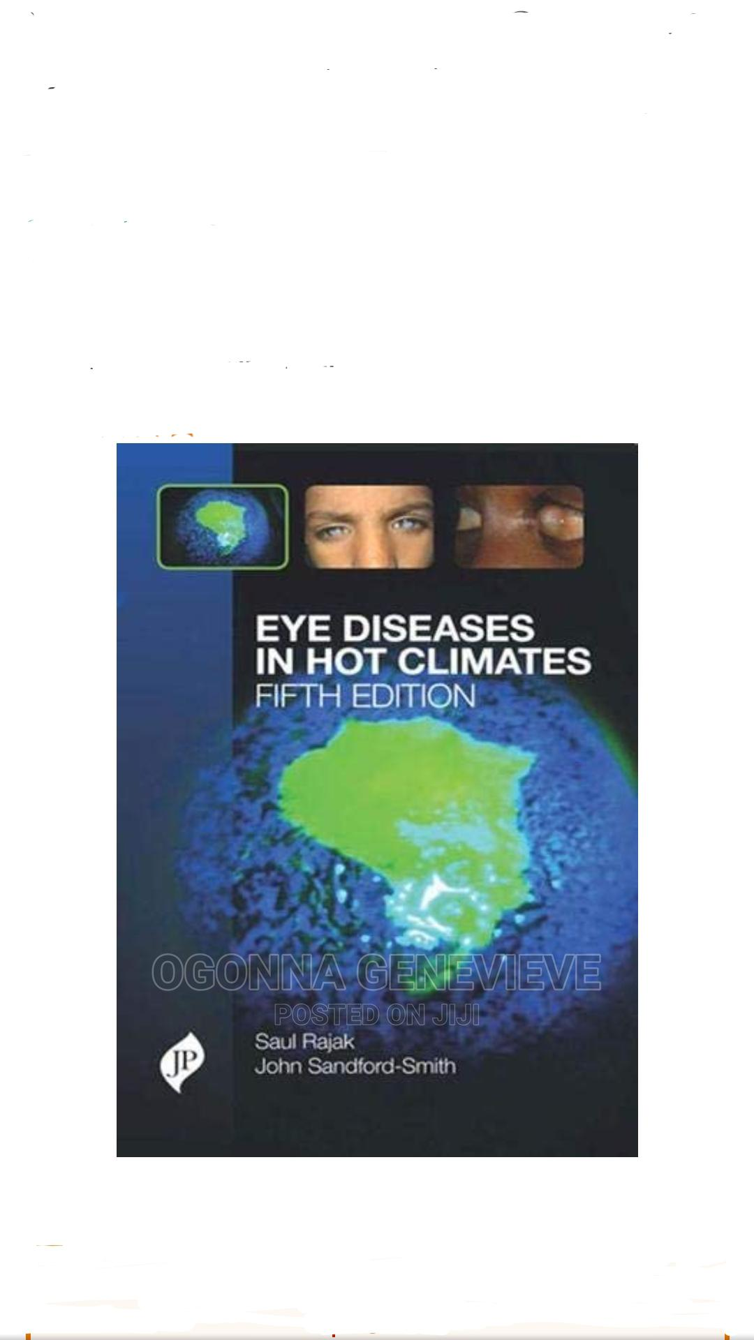 Eye Diseases in Hot Climates 5th Edition