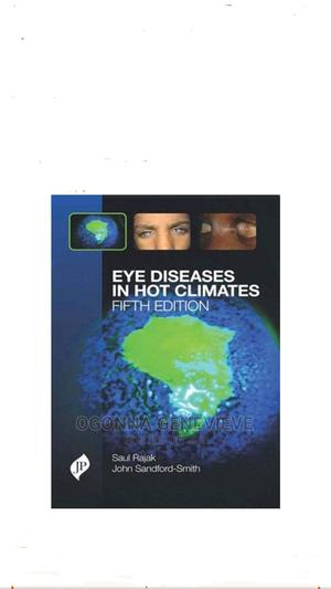 Eye Diseases in Hot Climates 5th Edition | Books & Games for sale in Lagos State, Yaba