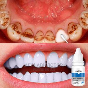 New Lanbena Teeth Whitening Gel Powder | Bath & Body for sale in Oyo State, Ibadan