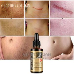 Stretch Marks And Scar Repair Essence.   Skin Care for sale in Lagos State, Surulere