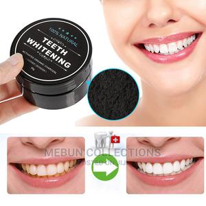 Miracle Teeth Whitener | Bath & Body for sale in Lagos State, Lagos Island (Eko)