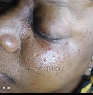 Let Us Help You Remove That Skintags.Yes, It Is Painless   Skin Care for sale in Oyo State, Ibadan